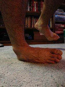 Ankle Inversion. Photo by BarneyStinson13, shared under Creative Commons license.